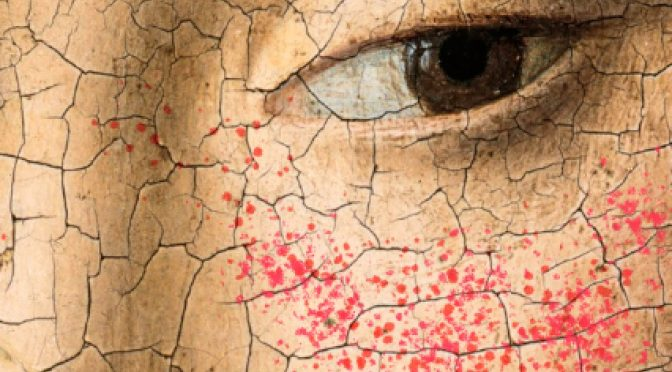 Living with angry skin and a constant itch is no cakewalk
